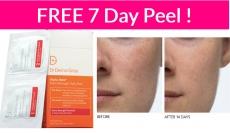 EASY – FREE 7 Day Peel!